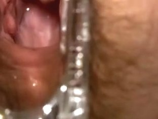 Showing the inside of my white slender wife with a speculum