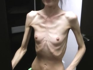 Anorexic Denisa posing and has ribs touched